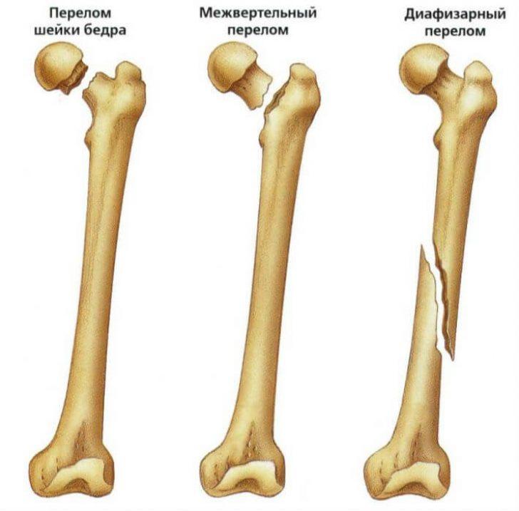 При каком заболевании болят все суставы и кости thumbnail