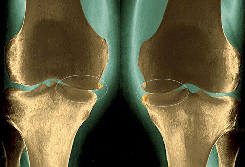 Изображение - Компресс на сустав сколько держать phototake_rm_photo_of_xray_of_knees_with_osteoarthritis