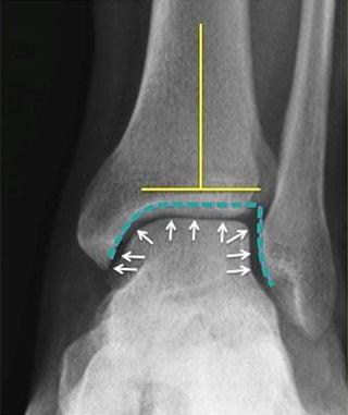 Средство от болей в колене голеностопе