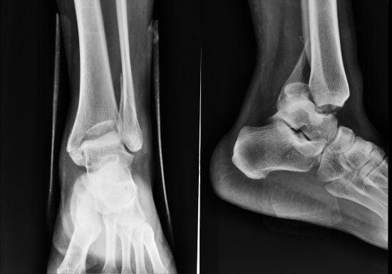 Болят голеностопы на обеих ногах лечение народными средствами в домашних условиях