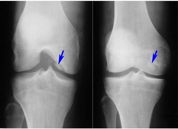 Изображение - Почему трещат кости и суставы rentgen_kolena_kenig