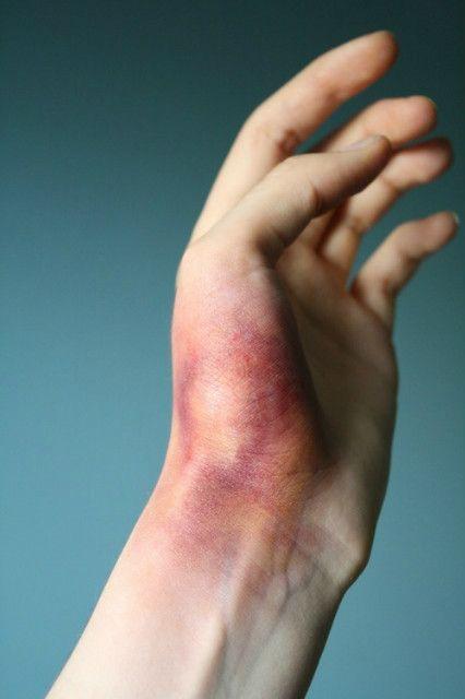 Ушиб Руки при Ударе или Падении - Лечение и Возможные Последствия
