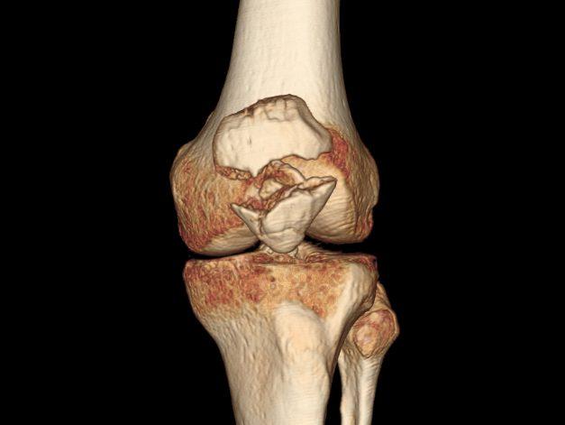 Что такое дисторсия коленного сустава причины симптомы степени заболевания и их лечение