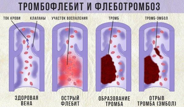 Боль и отек в левом голеностопном суставе
