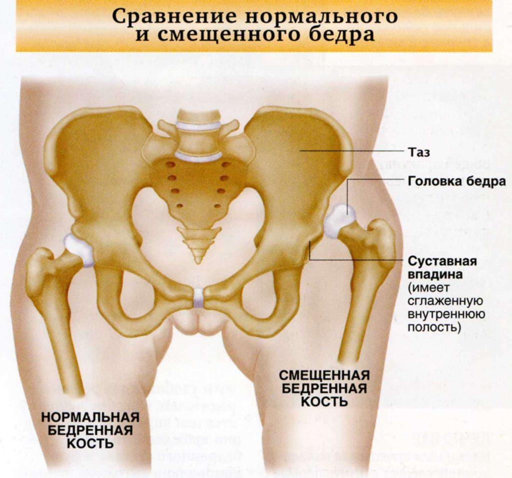 Изображение - Поражение тазобедренного сустава симптомы vyvikh_bedra-1024x956