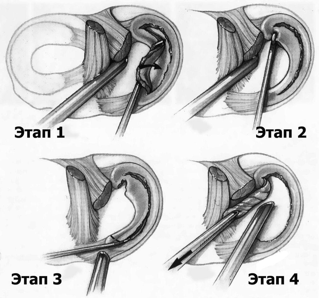 Изображение - Менископатия коленного сустава %D0%90%D1%80%D1%82%D1%80%D0%BE%D1%81%D0%BA%D0%BE%D0%BF%D0%B8%D1%8F-1024x958