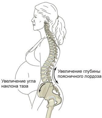 Беременность болят суставы таза