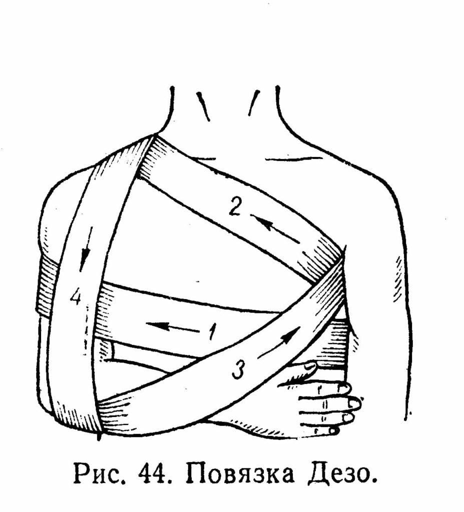 Изображение - Бандаж плечевого сустава правый 15937_html_m26f8733f-927x1024