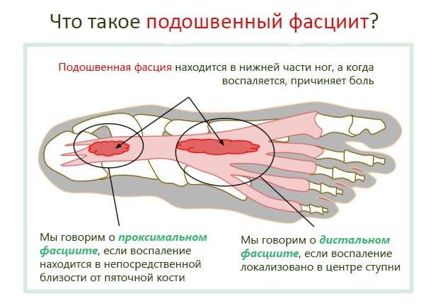 Боль в стопе (в верхней части и суставах): почему болит и лечение