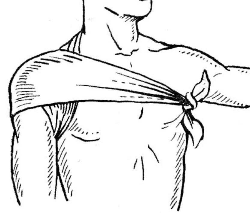 Изображение - Восходящая колосовидная повязка на плечевой сустав 242362_html_717a79a6
