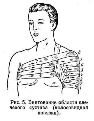 Изображение - Восходящая колосовидная повязка на плечевой сустав 5-3