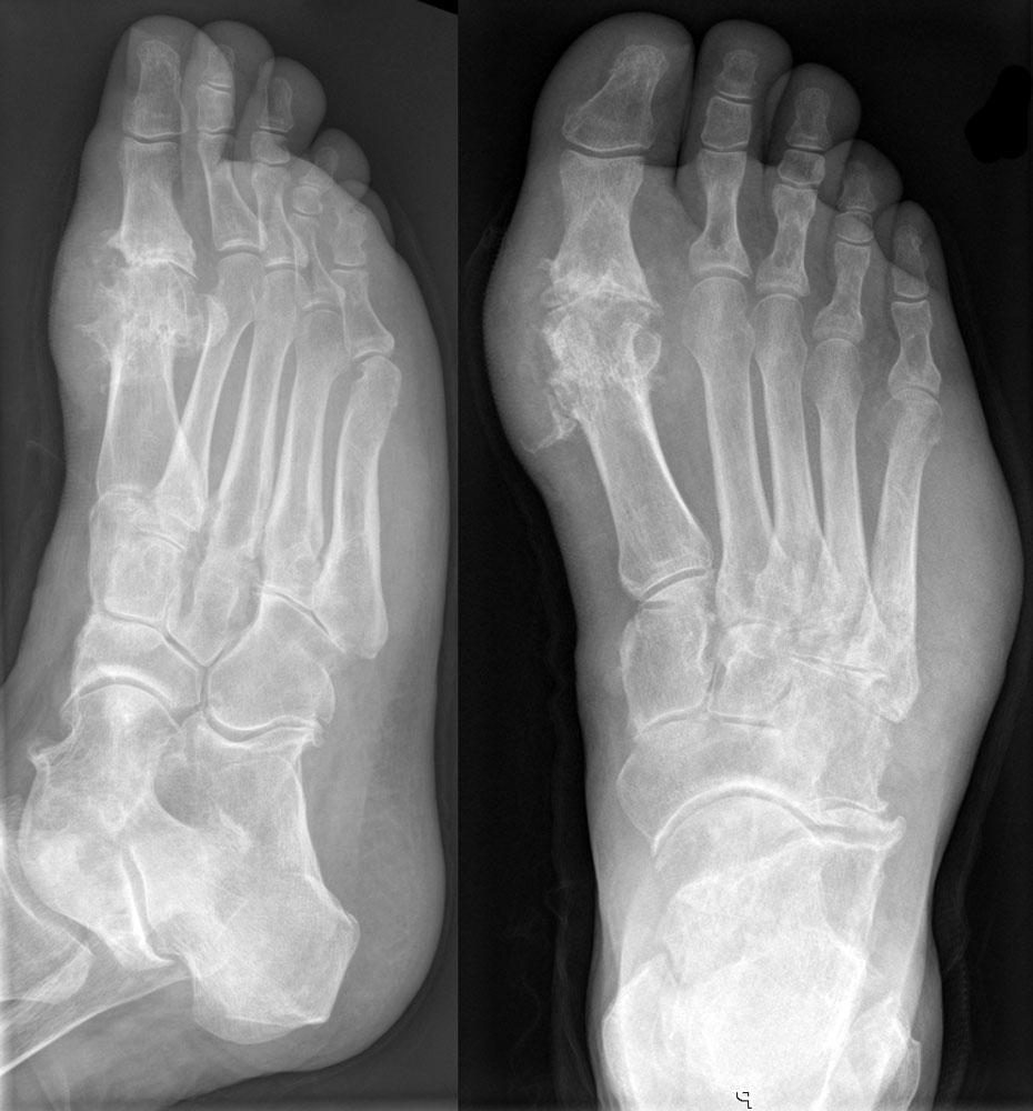 Артрит ног: причины, симптомы, диагностика и лечение
