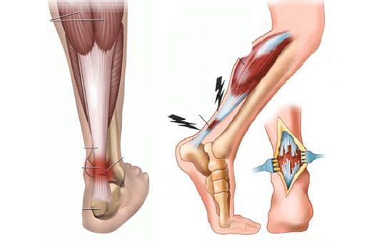 Надрыв связок голеностопного сустава сроки восстановления