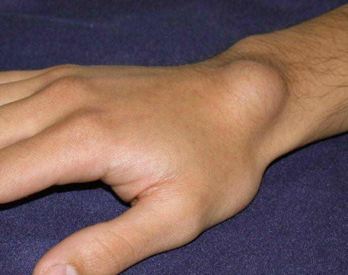Причины и лечение шишек на суставах пальцев рук