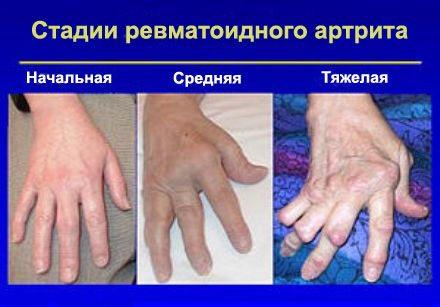 Изображение - Суставы фалангов пальцев RA-evreleri