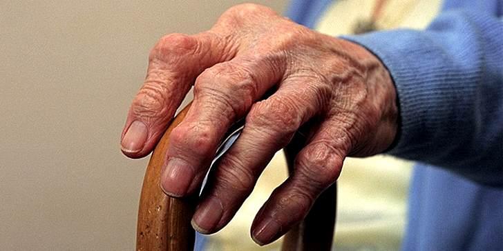 Изображение - Болезни суставов рук симптомы лечение Simptomy