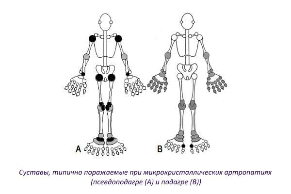 Изображение - Отложение солей в тазобедренном суставе лечение Sustavy-tipichno-porazhaemye-pri-mikrokristallicheskih-artropatiyah