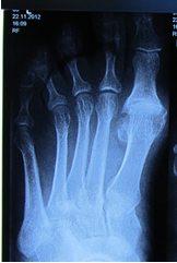 Артроз плюснефаланговых суставов 2 стадии лечение -