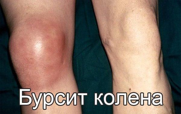 Изображение - Результаты мрт коленного сустава расшифровка bursit-kolena-2