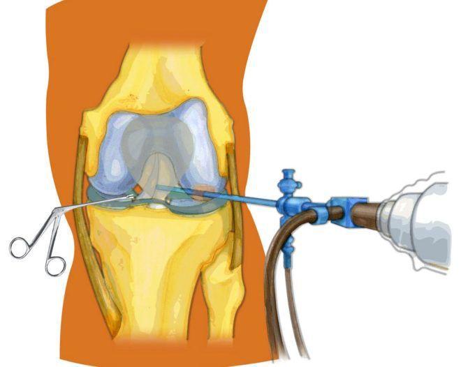 Септический артрит как инфекция разрушает наши суставы