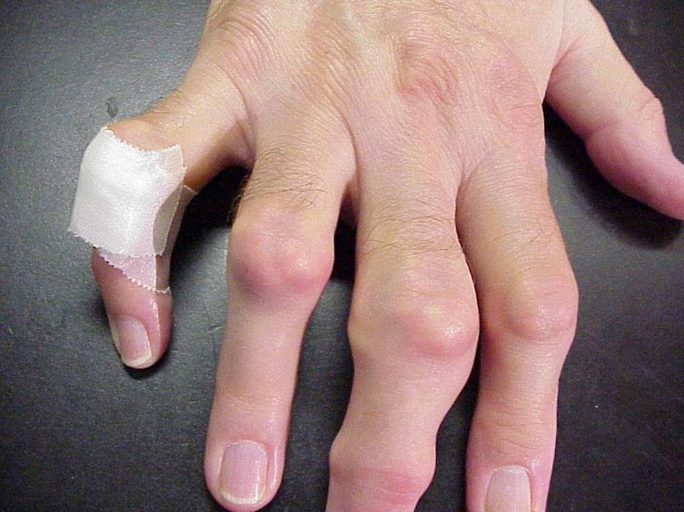 Изображение - Суставы фалангов пальцев gout-Tophi-on-Hands