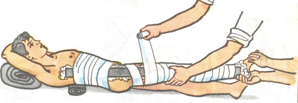 Вывих бедренного сустава фото thumbnail