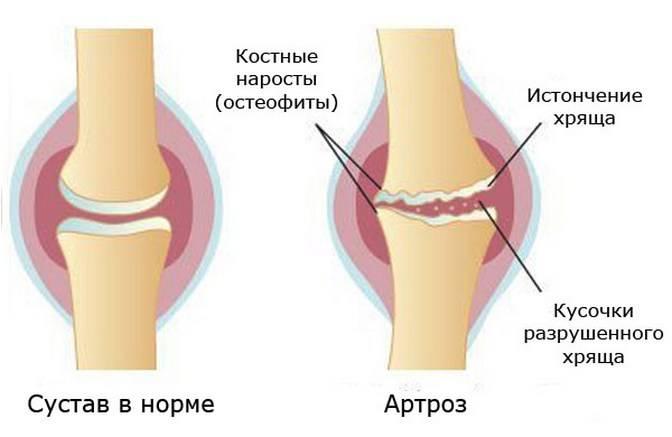 Артроз стопы причины симптомы осложнения лечение