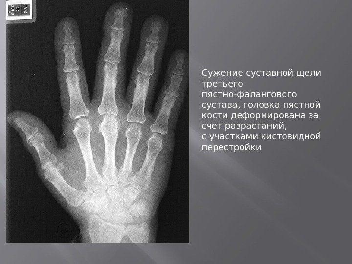 Изображение - Артроз суставов кисти malinbekova_vd.pptx_18
