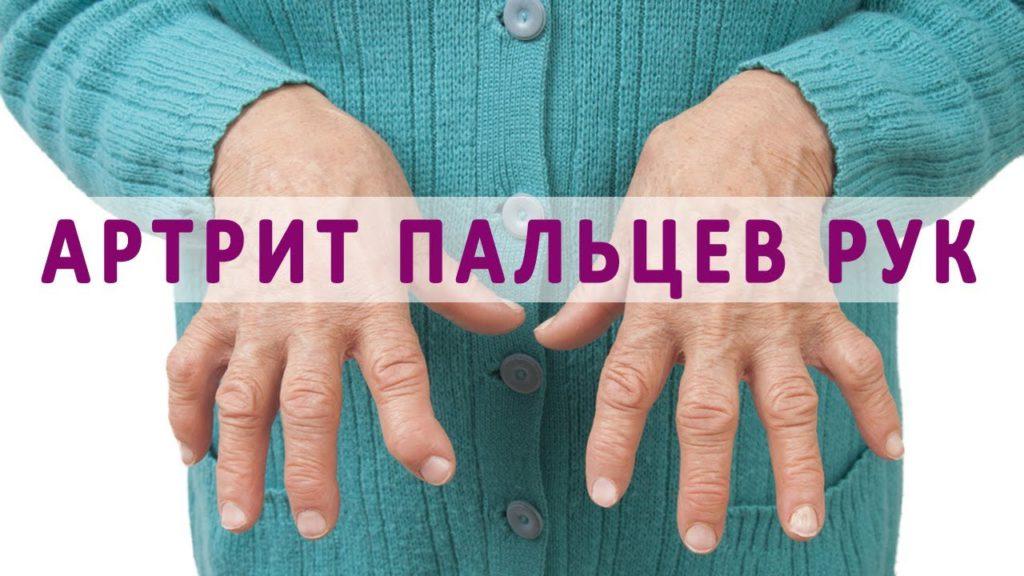 Ревматоидный артрит кистей рук - лечение и профилактика