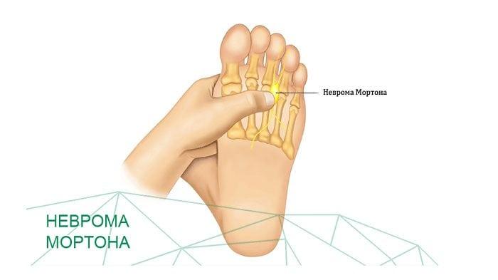 Болят суставы ступни лечение
