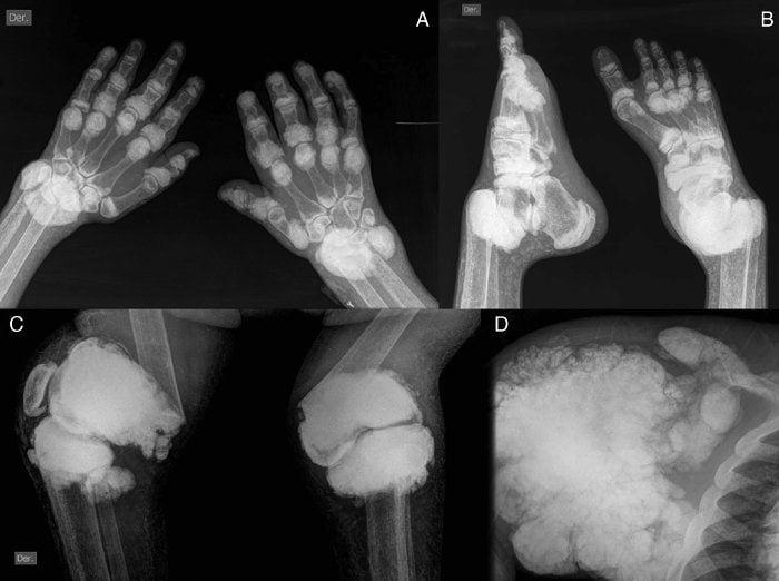 Отложение солей в коленном суставе народные средства лечения