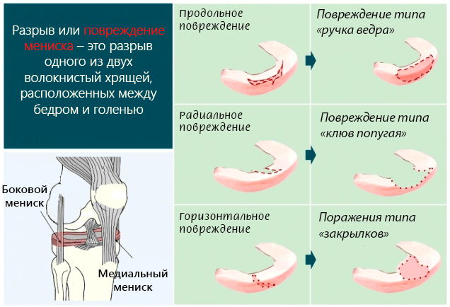 Изображение - Менископатия коленного сустава povrezhdenie-meniska-kolena