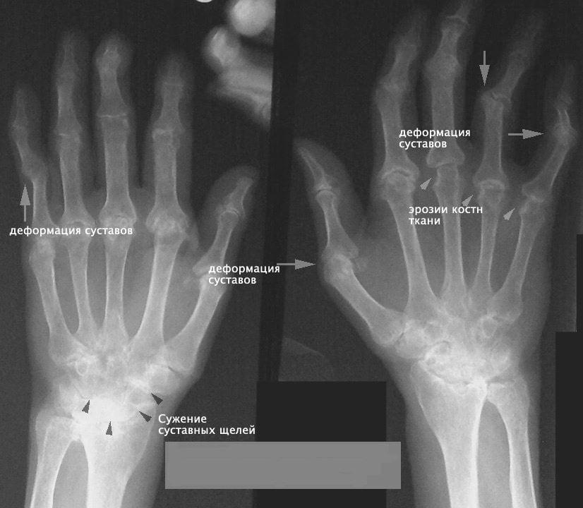 Артрит кисти рук и его лечение