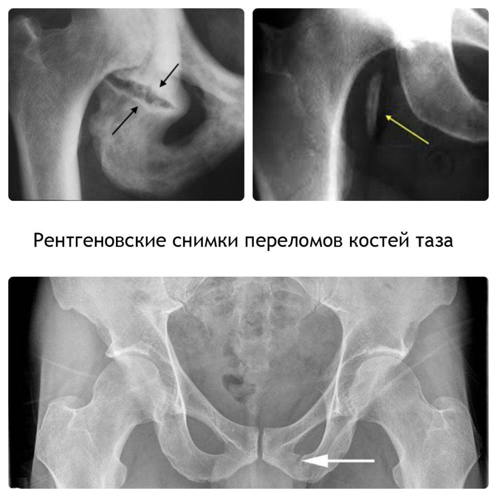 Боль слева внизу спины у женщин