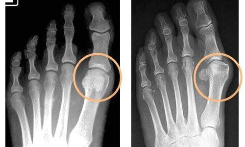 Лечение остеоартроза стоп массажем и другими методами