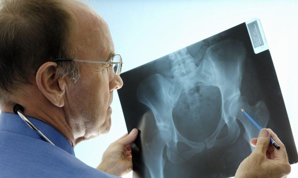 Изображение - Можно ли делать рентген тазобедренного сустава snimok