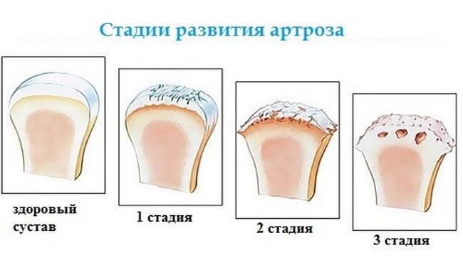 Медикаментозное и народное лечение артроза голеностопного сустава с применением наиболее действенных средств