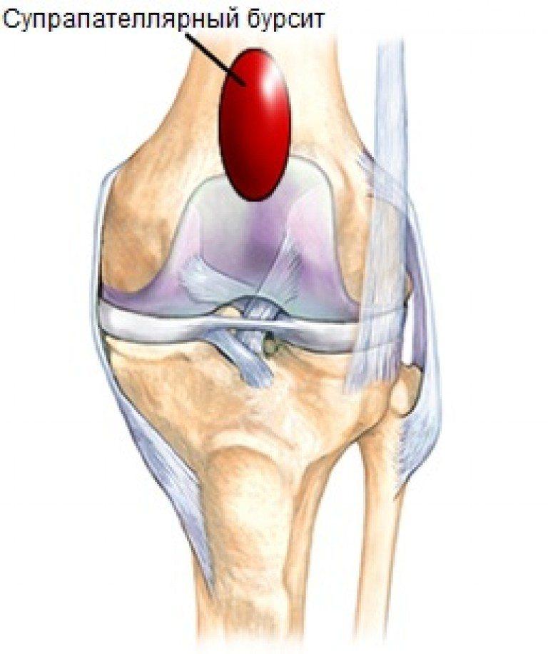 Изображение - Супрапателлярный бурсит коленного сустава лечение suprapatelljarnyj-bursit-768x916