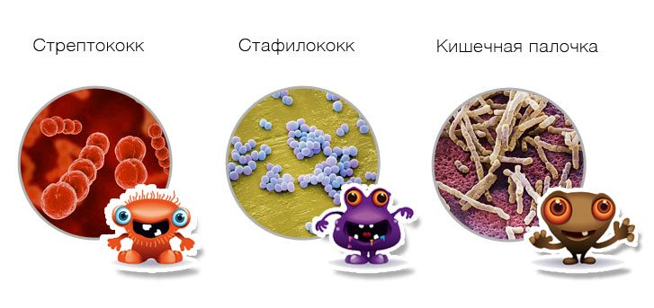 Изображение - Лечение воспаления суставов антибиотиками vidi-bakteriy