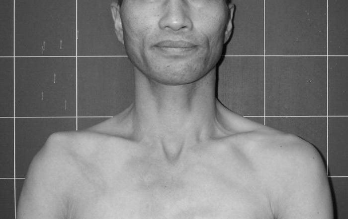 Изображение - Восходящая колосовидная повязка на плечевой сустав vivixklyuchitsiprichinisimptomidiagnosti_E4D93E68