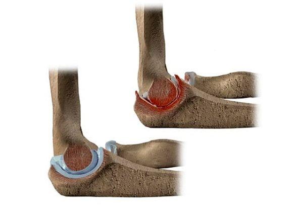 Артроз локтевого сустава лечение - симптомы и стадии, лечение