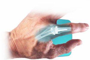 Полиостеоартроз суставов кистей рук, стопы, коленных суставов