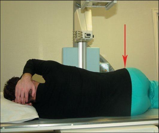 Подготовка к рентгену пояснично крестцового отдела позвоночника