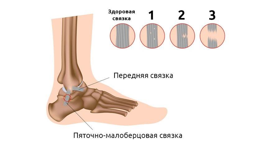 Изображение - Первая помощь при растяжении сустава stepeni-rastyazhenya-svyazok-golenostopa