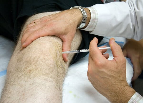 Изображение - Инъекция в коленный сустав лекарство 1-195-2