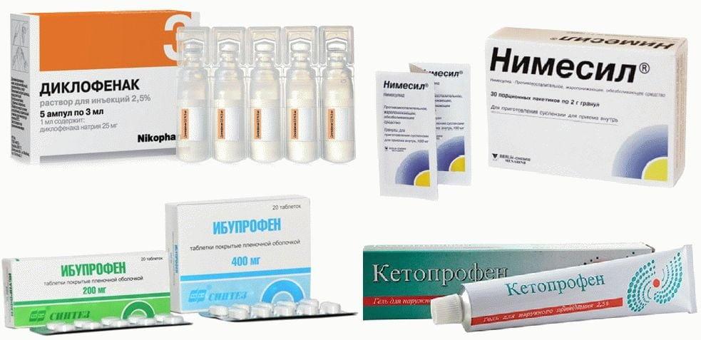 Препараты при артрозе первого плюснефалангового сустава