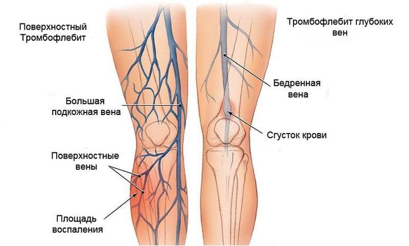 Причина асептического некроза коленного сустава thumbnail