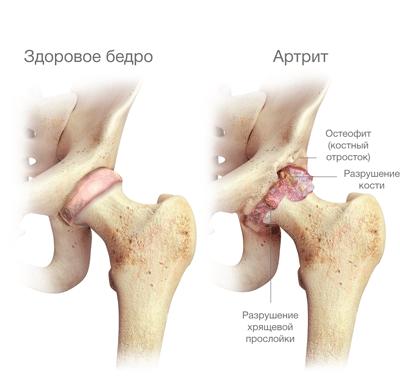 Изображение - Лечение артрита тазобедренного сустава народными средствами Artrit-tazobedrennogo-sustava-