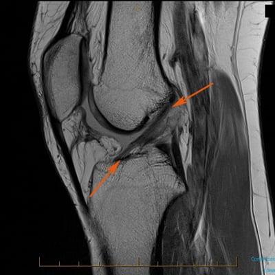 Изображение - Заболевание связок коленного сустава Mri-knee-injury-acl-a