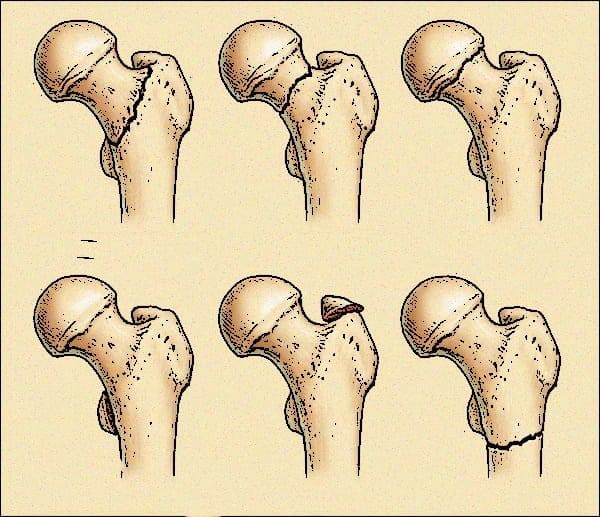 Болит бедро сбоку в области сустава лечение